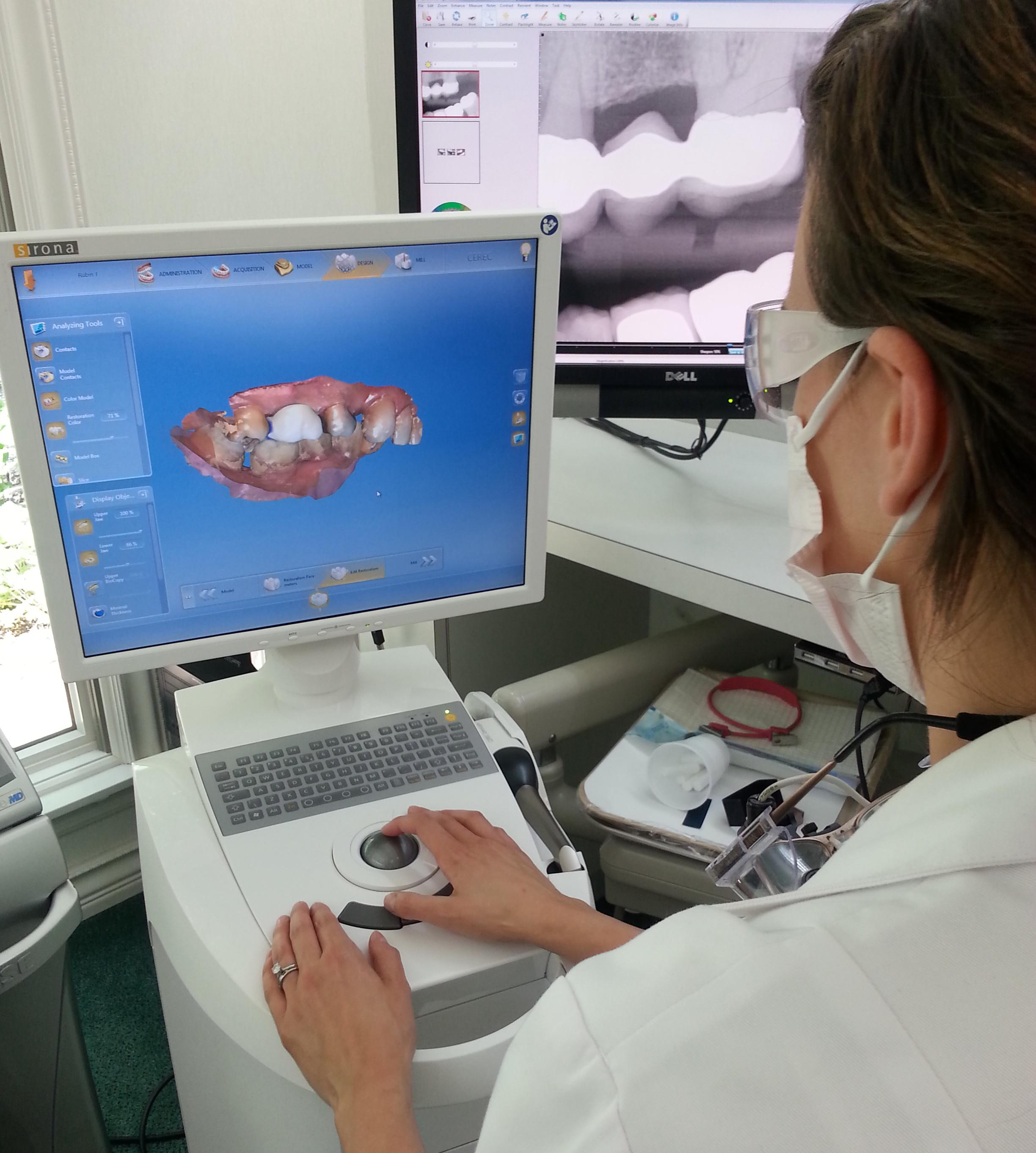 cerec crowns in northport ny
