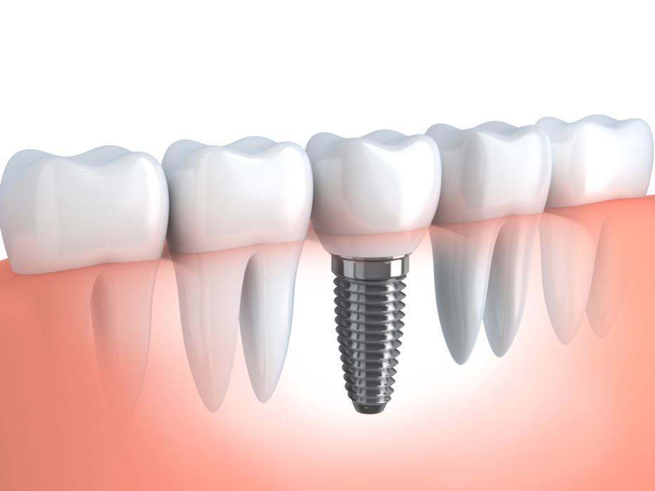 Same Day Implants | Northport NY Dentist