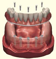 Dentures | Northport Family Dental