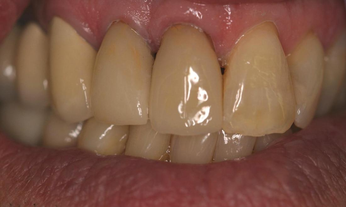 implant supported crowns northport ny