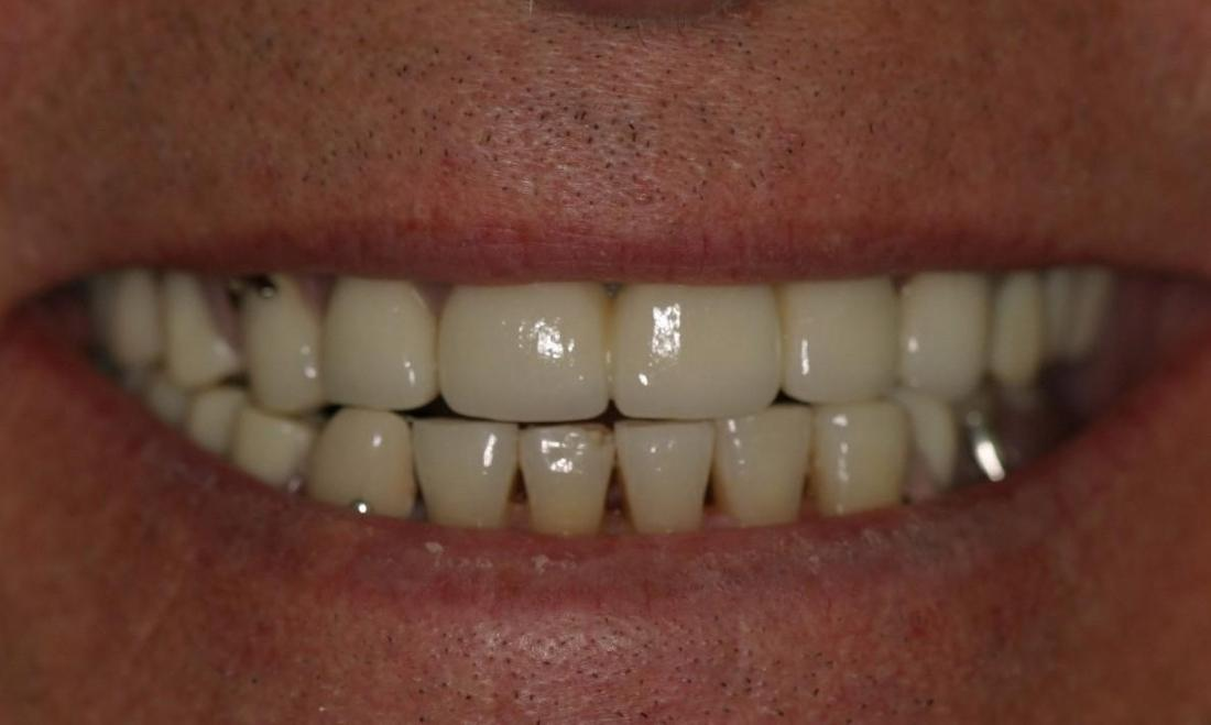 full mouth restoration northport ny