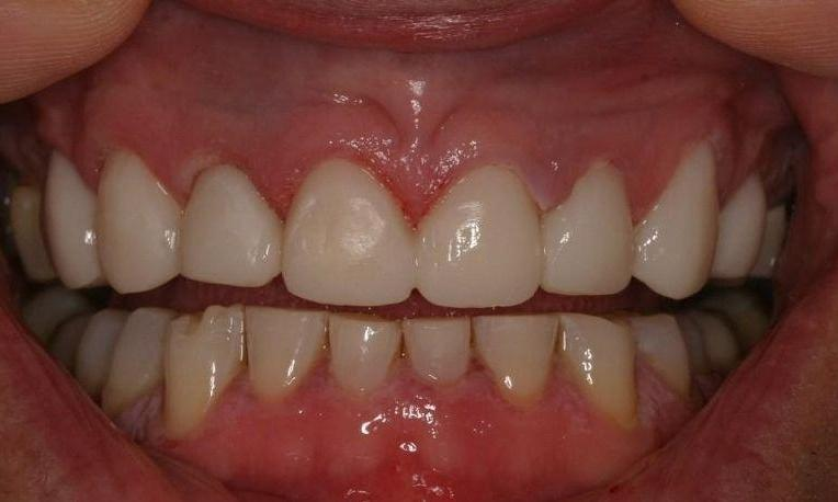 porcelain veneers northport ny