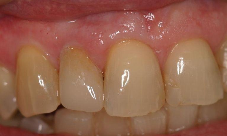 Fractured Tooth Replaced with a CEREC Crown