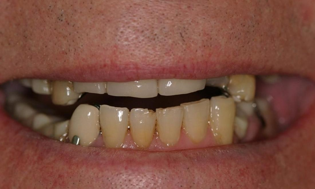 severely worn teeth