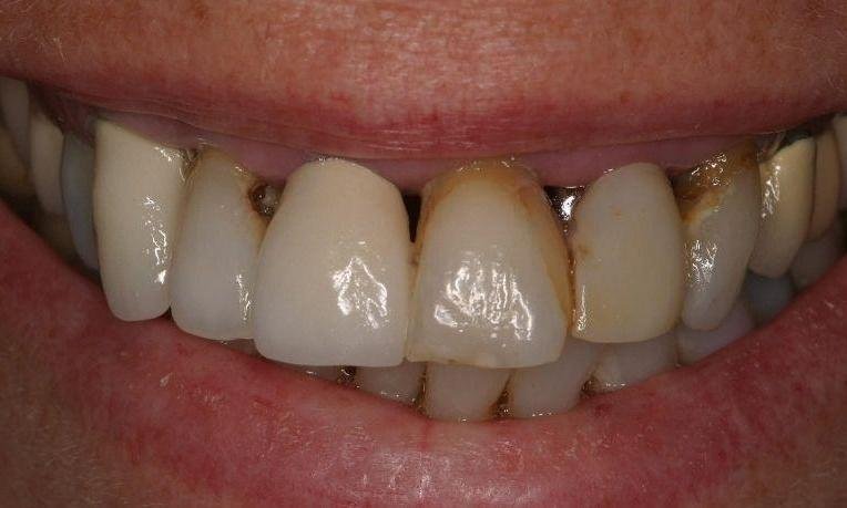 decayed, discolored teeth