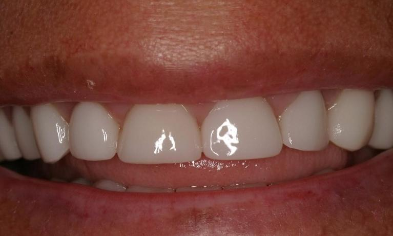 CEREC-Crowns-for-Severely-Worn-Teeth-After-Image