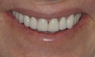 CEREC-Smile-Makeover-After-Image