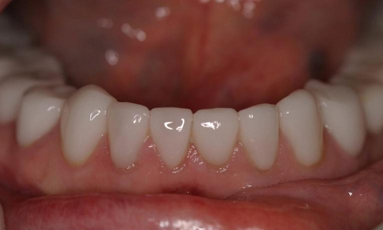 CEREC-Upper-and-Lower-Crowns-After-Image