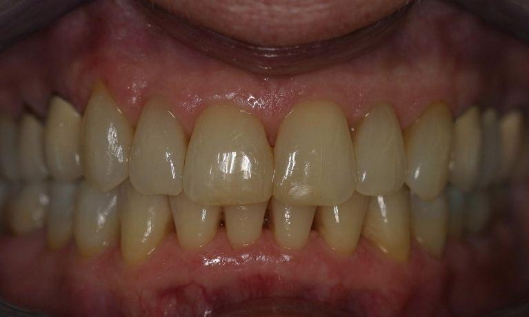 Invisalign-7-Years-Later-After-Image