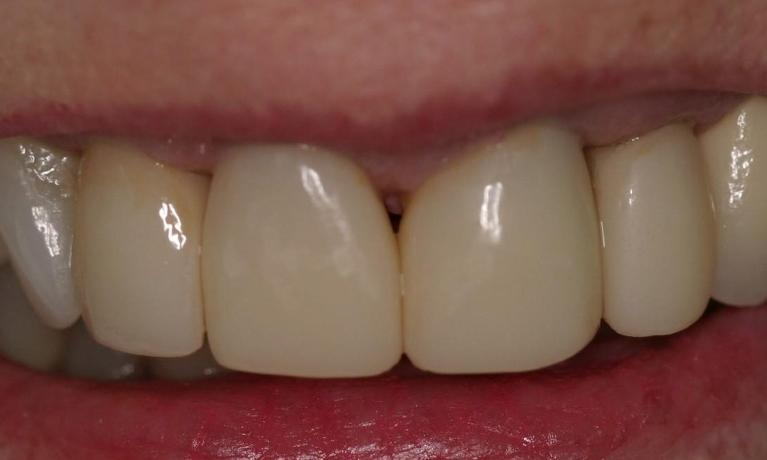 One-Visit-Replacement-of-Unattractive-Crowns-After-Image
