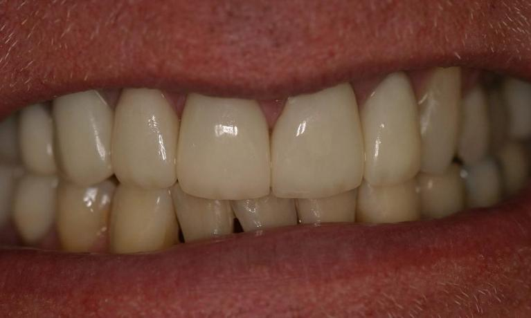 Porcelain-Crowns-to-Transform-Your-Smile-After-Image