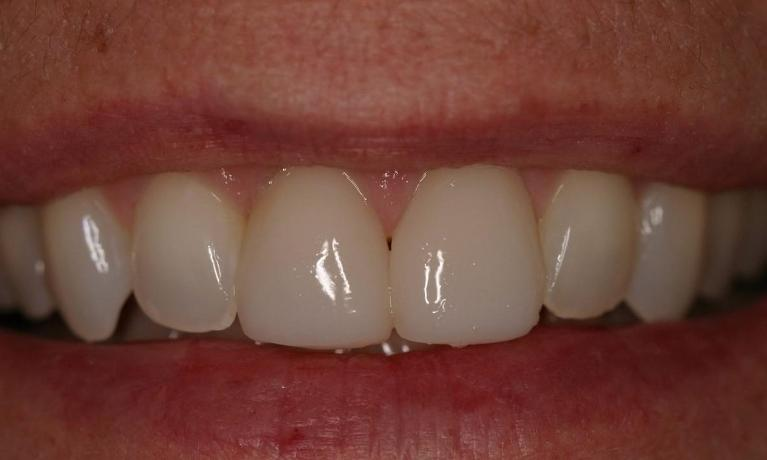 One-Visit-Porcelain-Crowns-After-Image