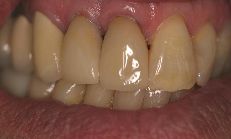 Implant-Supported-Crowns-After-Image