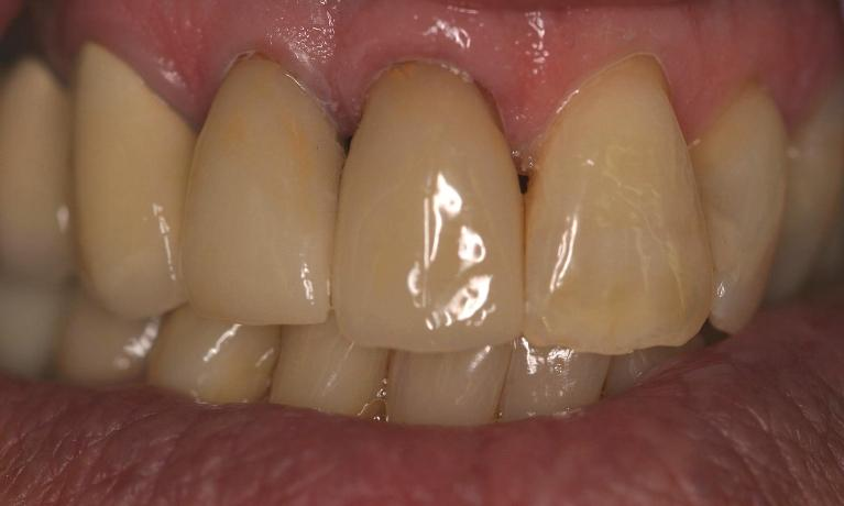 Cerec-Smile-Symmetry-After-Image