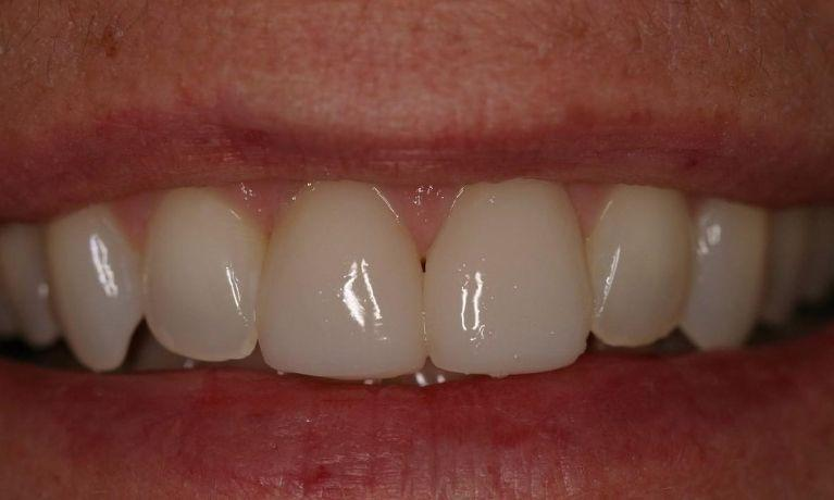 two cerec crowns placed on patients smile | northport ny