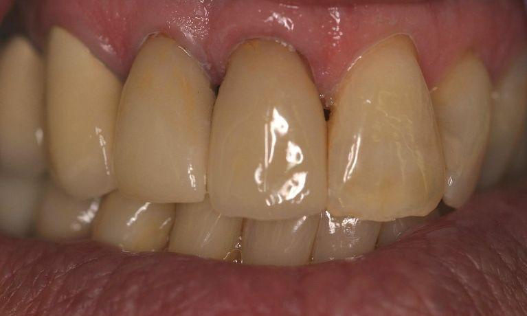 cerec crowns | cosmetic dentistry northport ny