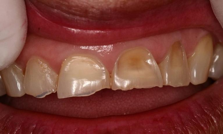 CEREC-Crowns-for-Severely-Worn-Teeth-Before-Image