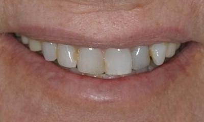 CEREC-Smile-Makeover-Before-Image