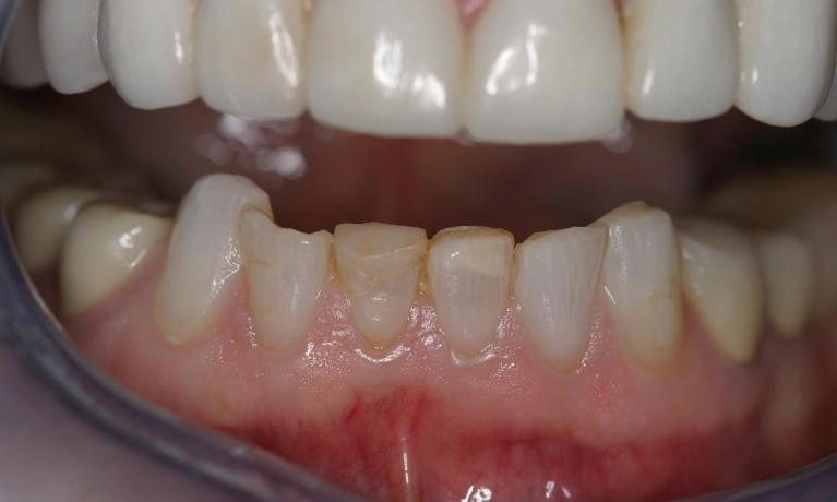 CEREC-Upper-and-Lower-Crowns-Before-Image