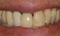 Cerec-Smile-Symmetry-Before-Image