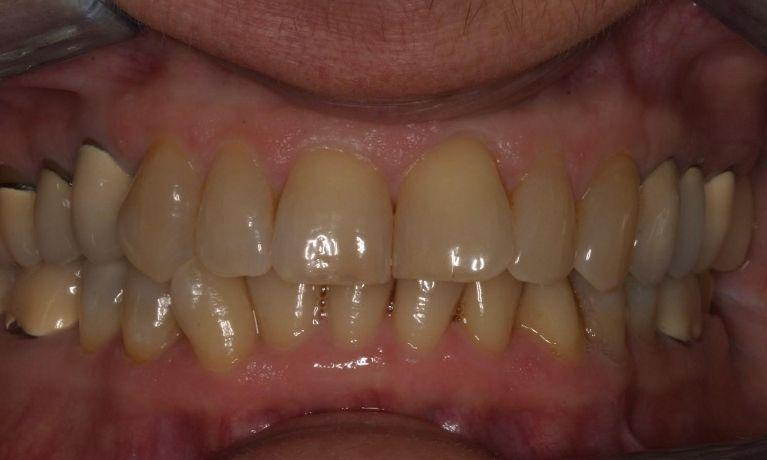 Invisalign-7-Years-Later-Before-Image