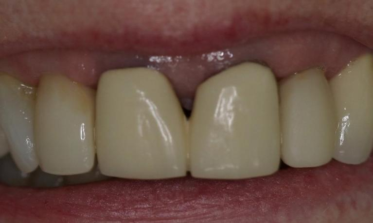 One-Visit-Replacement-of-Unattractive-Crowns-Before-Image