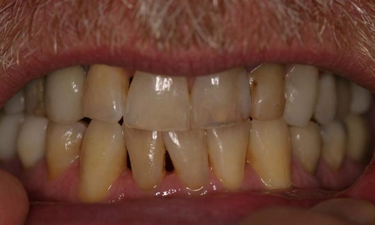 gaps in discolored teeth