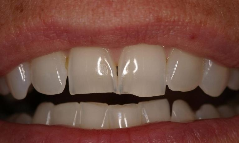 One-Visit-Porcelain-Crowns-Before-Image