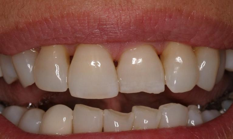 What-A-Difference-A-Single-Tooth-Can-Make-Before-Image
